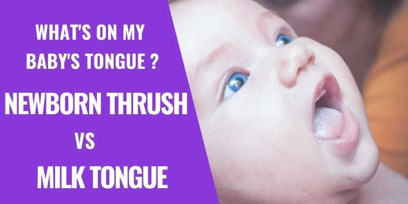 Is Curdled Milk on a Baby's Tongue a sign of Thrush?